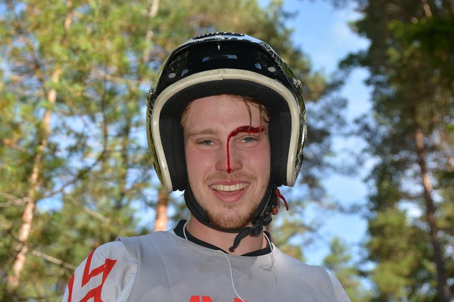 Ole Kristian måtte sy noen sting før det bar ut i skogen igjen for å fullføre!